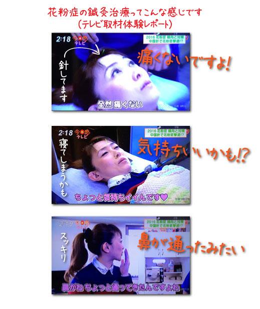 福岡で花粉症の鍼灸治療