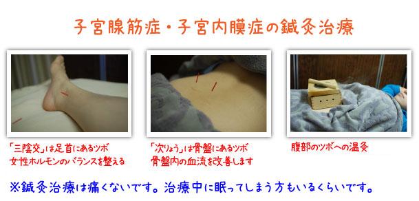 福岡の鍼灸腺筋症の鍼灸治療をお探しの方へ