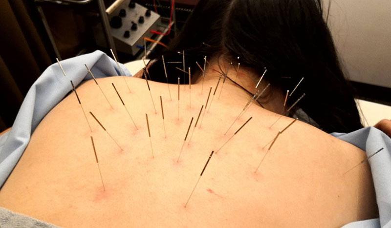 肩甲骨の鍼治療