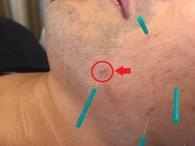 ニキビを治す美容鍼