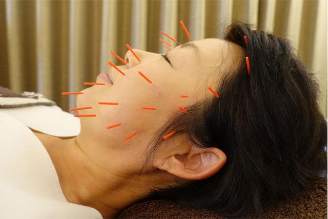 顔のむくみに効く美容鍼