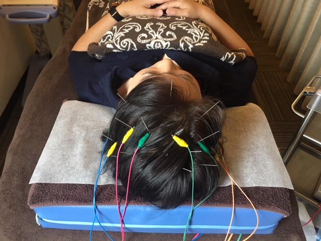 電気育毛鍼で頭皮を刺激