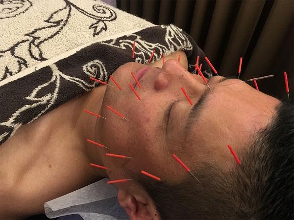 福岡で男性の美容鍼の施術を受ける