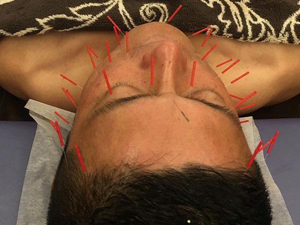 美容鍼は男性も施術可能です。