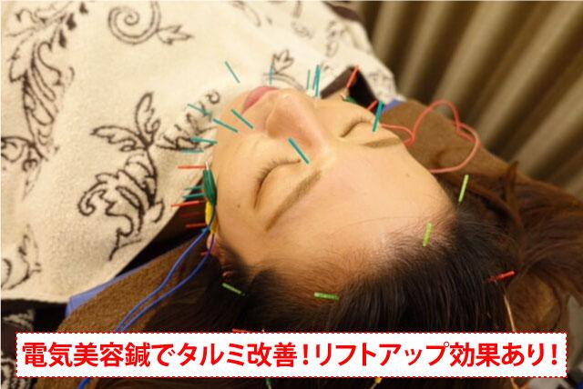 福岡で電気美容鍼を受けたい方必見!