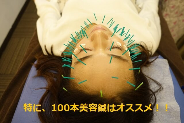 化粧ノリが良くなる100本美容鍼