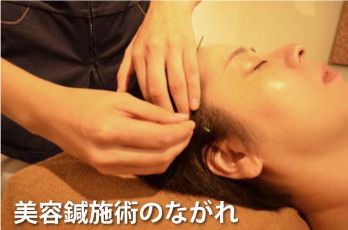 美容鍼施術のながれ