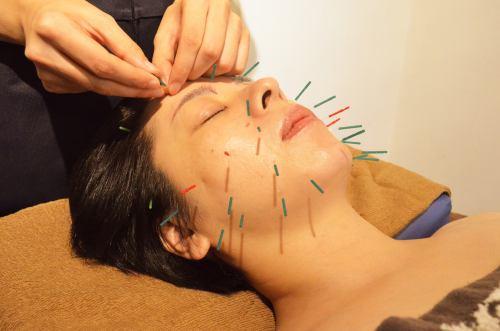 美顔のツボに鍼をしていきます