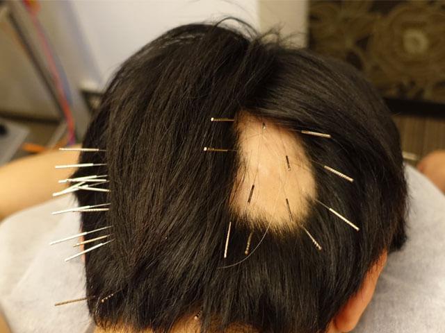 円形脱毛の鍼灸治療