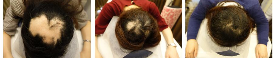 円形脱毛 鍼 症例写真